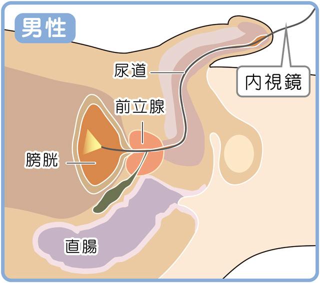 膀胱鏡検査